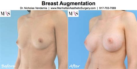 recovery time after breast surgery jpg 1078x544